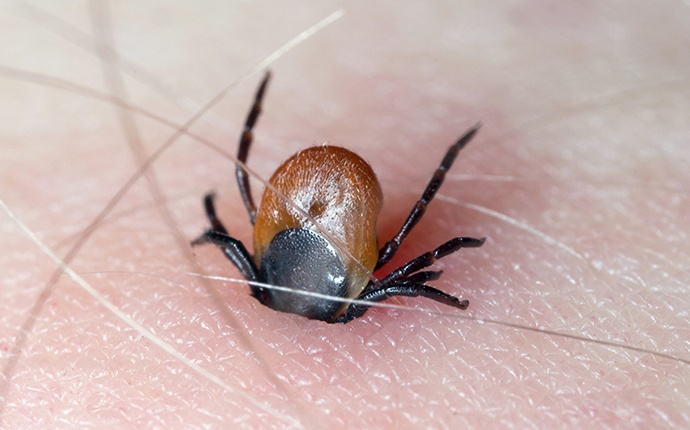 a tick burrowing into a persons leg