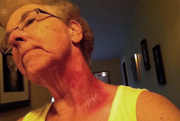 Throat cancer on Rachel LaPlante