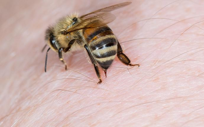 a bee stinging a persons skin