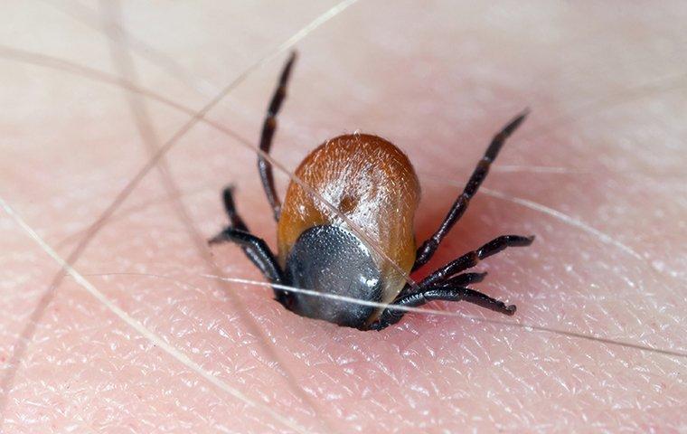 a tick biting human skin