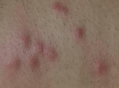 bed bug bites on skin