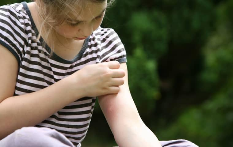 girl looking at a mosquite bite