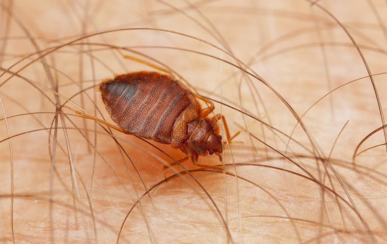 bed bug biting skin