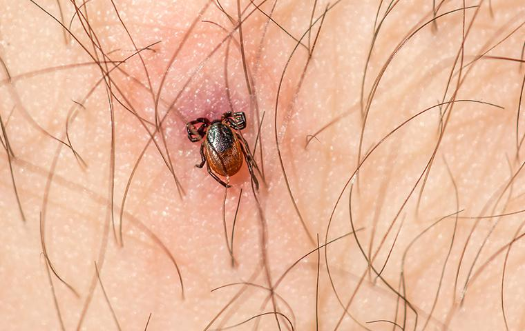 attached blacklegged tick biting skin