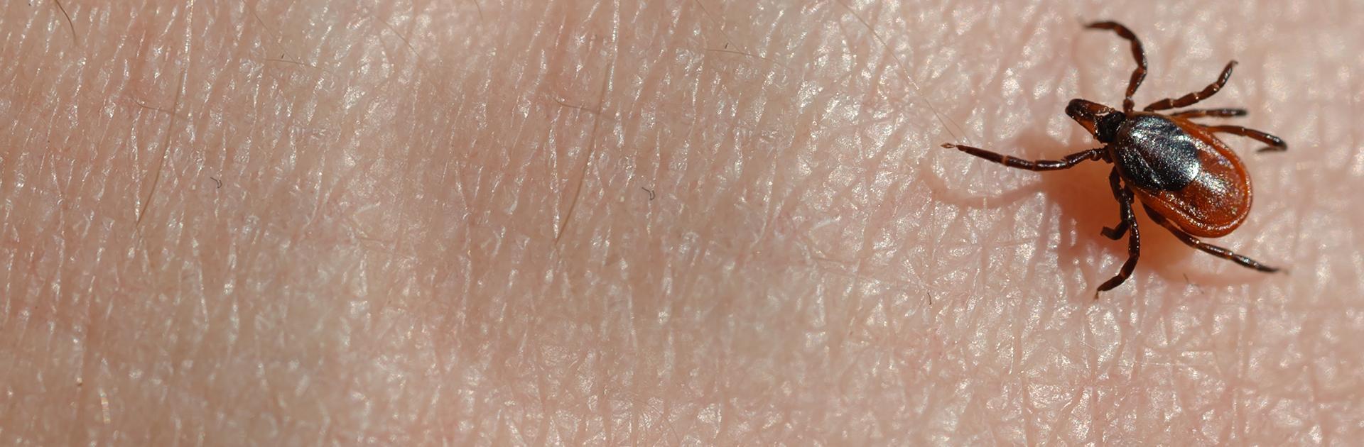 deer tick crawling on skin