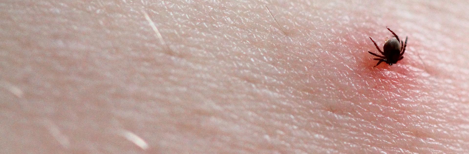 tick embedded in skin