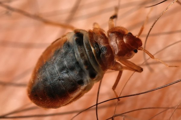 a bed bug crawling on the skin of a student inside of a school in west chester pennsylvania