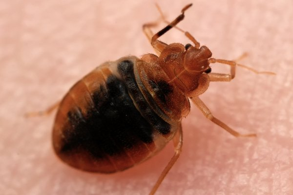 a bed bug crawling on the skin of a homeowner inside of a home in souderton pennsylvania