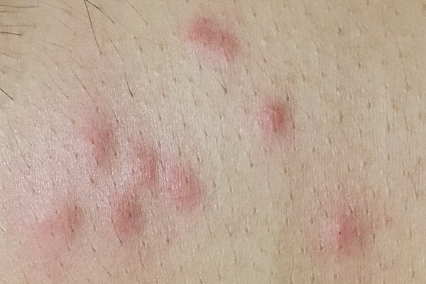 bed bug bites on a human resident in pennsylvania