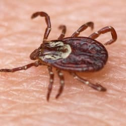 tick on a persons hand