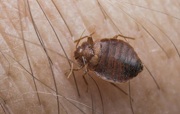 a bed bug crawling on a persons leg