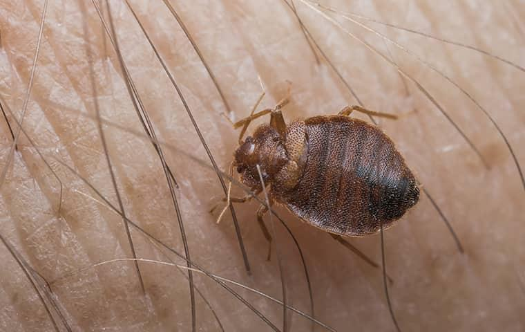 a bed bug biting skin