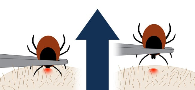 Graphic displaying how to remove a tick from skin