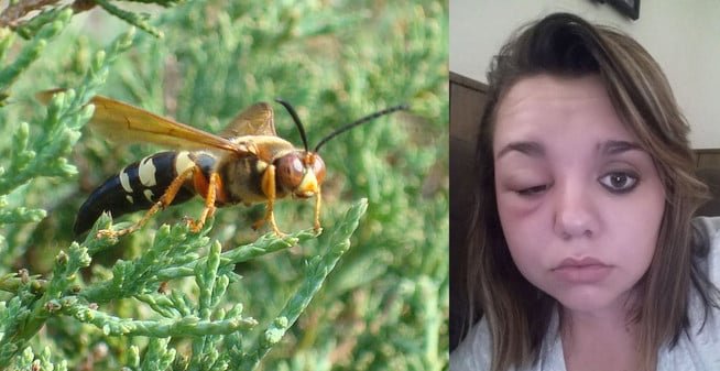 Carrollton resident stung on eye lid by cicada killer wasp or european hornet causes swollen eye and face