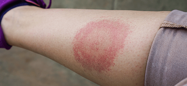 bulls eye rash from lyme disease