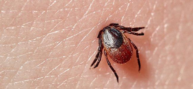 tick embedded into skin