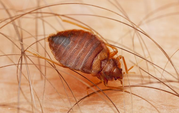 bed bug biting the skin of a washington dc resident