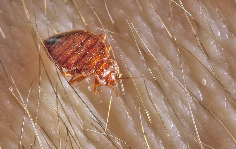 a full grown adult bed bug crawling through the hairy skin on a new jersey resident
