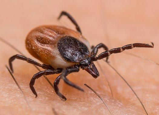 a black legged tick on a persons skin