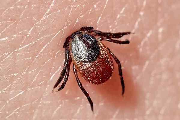a tick biting skin