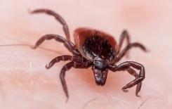 a black legged tick on a mans skin