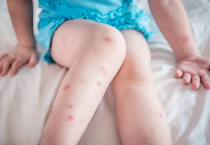 bed bug bites on a small childs legs